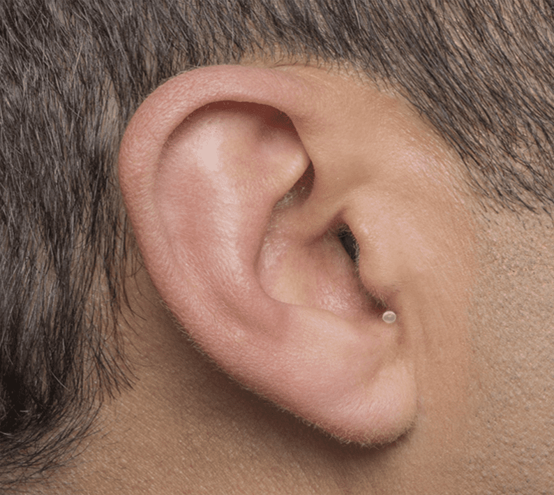 Invisible in canal hearing device